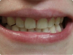 Befoe and After Invisalign