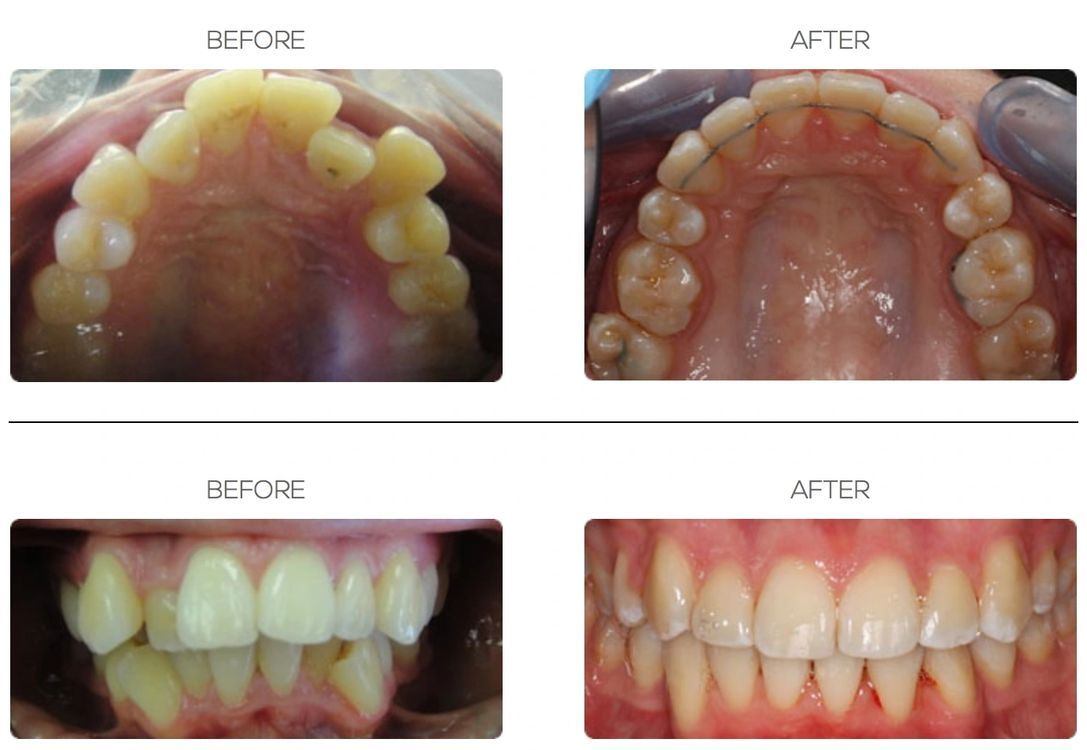Before and After with Fixed Braces in Bournemouth