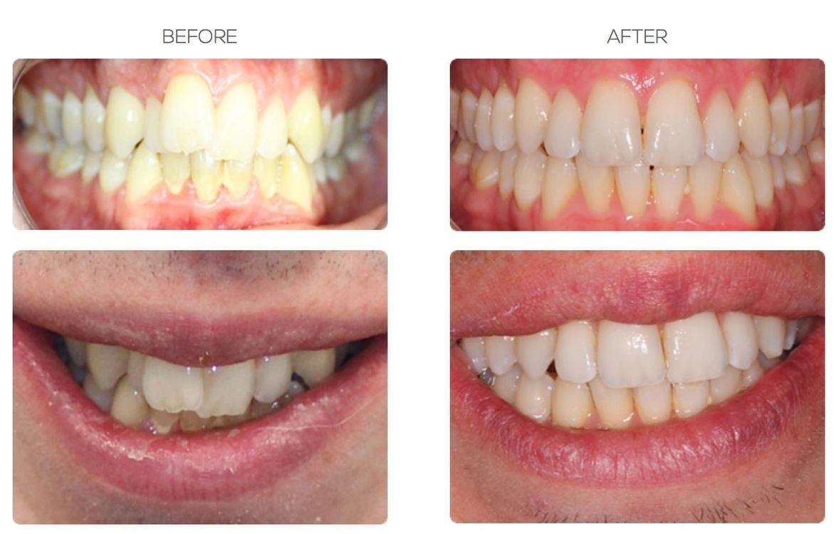 Childrens Orthodontic Treatment with Fixed Braces in Bournemouth