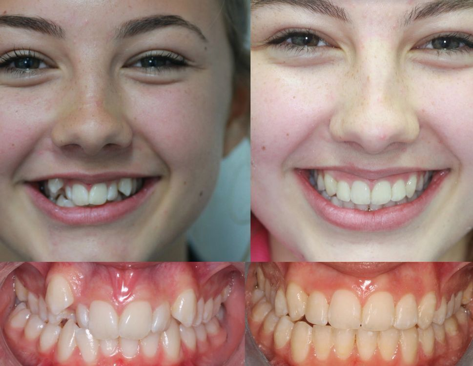 Orthodontics without extractions in Bournemouth