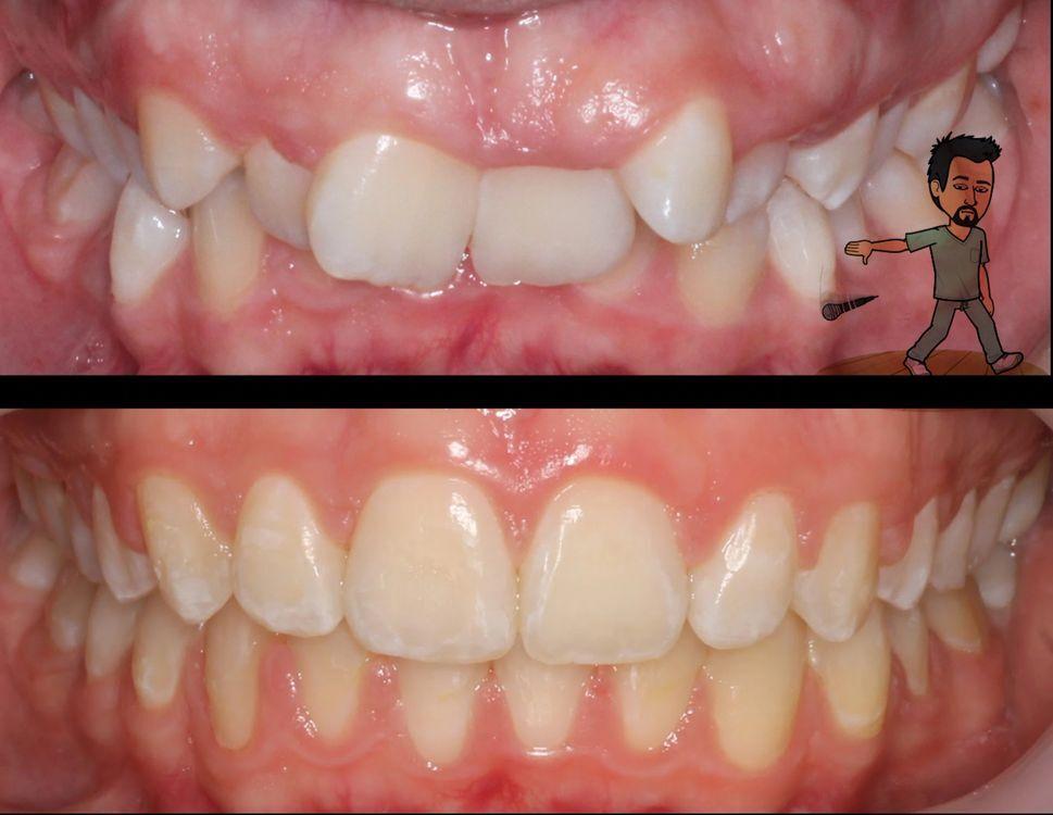 Orthodontic treatment with minimal discomfort