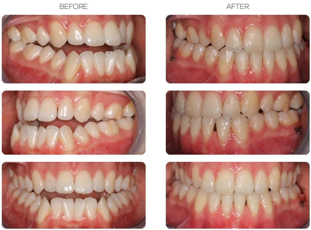 Before and After of Orthodontist in Bournemouth Patient