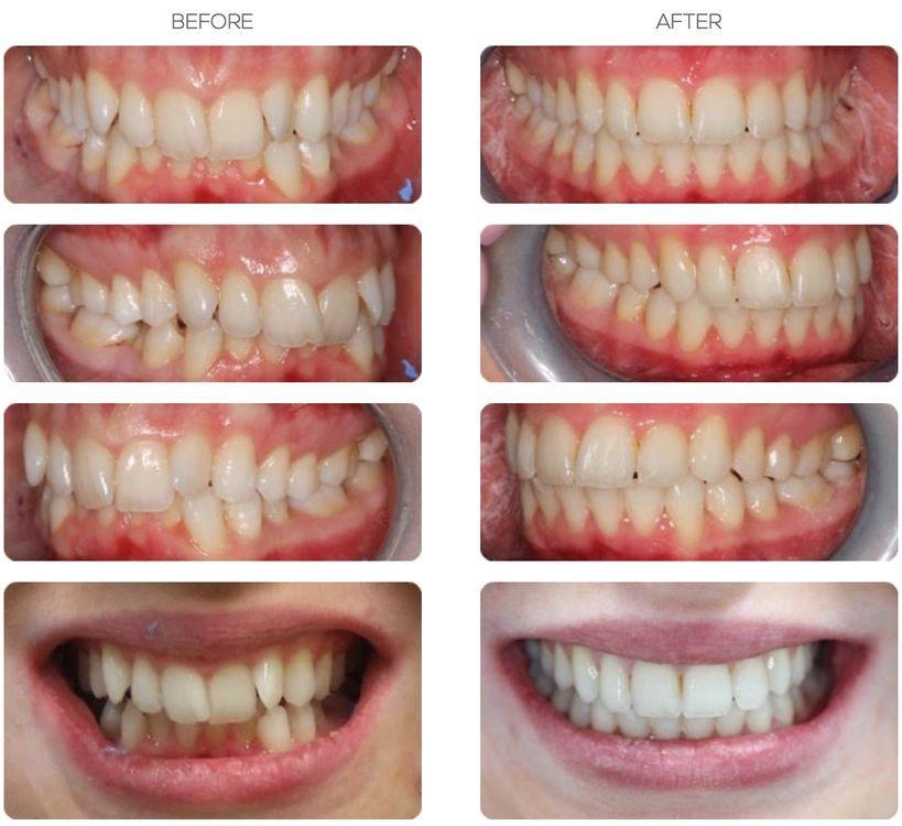Orthodontic treatment Bournemouth