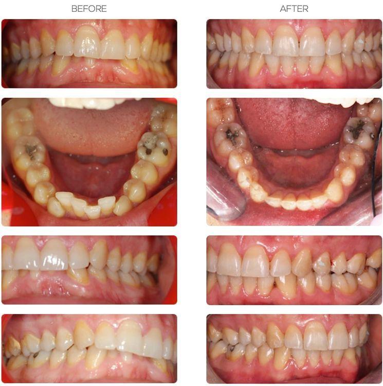 Dentist Bournemouth treatment